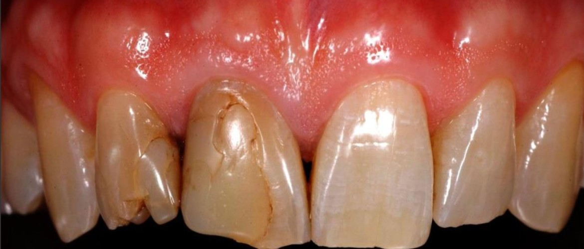 Patient presents himself with old, discolored large restorations and fractures.