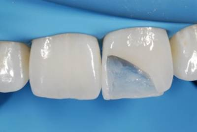 The first layer of composite is build up and bonded to the tooth and polymerized.