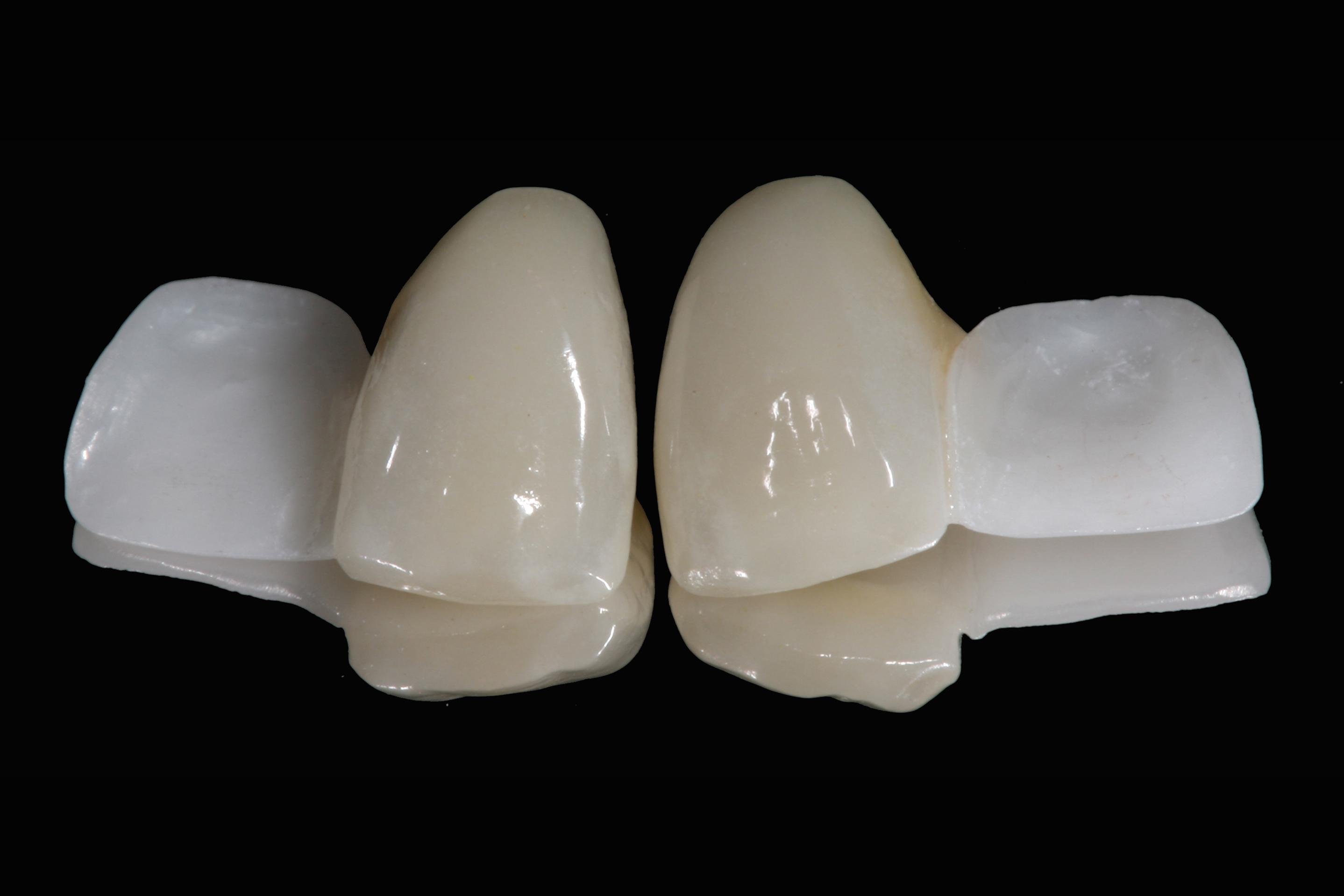 do flippers feellook natural please help!  Dental