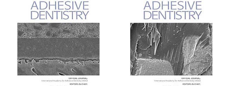 Journal-of-adhesive-dentistry-JAD2